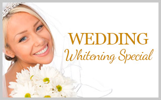 Wedding Whitening Special